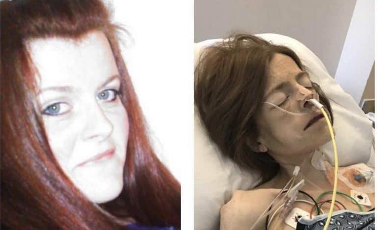 Etats-Unis. Elle poste la photo de sa nièce morte ravagée par la drogue