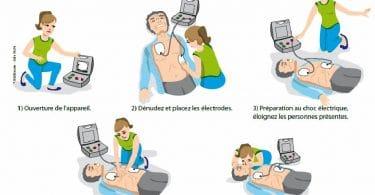 defibrillateur-comment-ca-marche