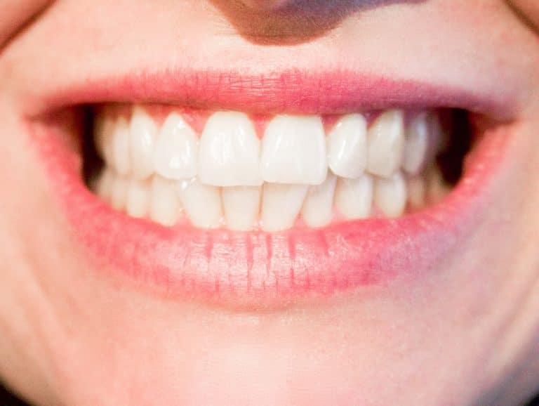 Tarifs des soins dentaires. La Bretagne peut garder le sourire