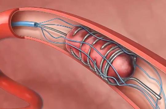 thrombectomie