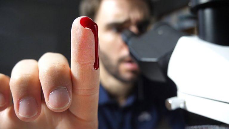 Docteur Nozman montre le contenu du sang au microscope
