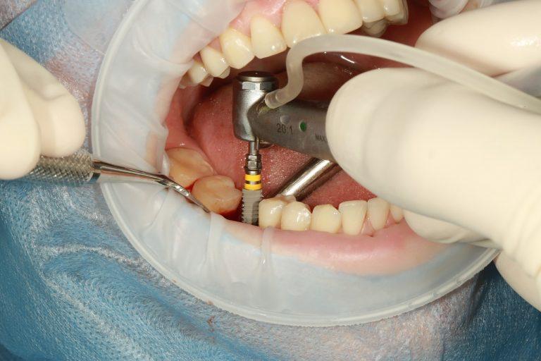 Vacances de Noël. Les dentistes ont-ils abandonné les Bretons ?